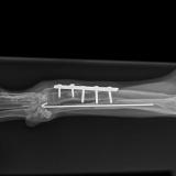 płytka stabilizująca kość promieniową i gwóźdź w kości łokciowej