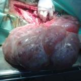 Nowotwór jądra mający wielkośc głowy człowieka usunięty z jamy brzusznej