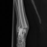 złamanie w obrębie nasady dalszej kości podudzia